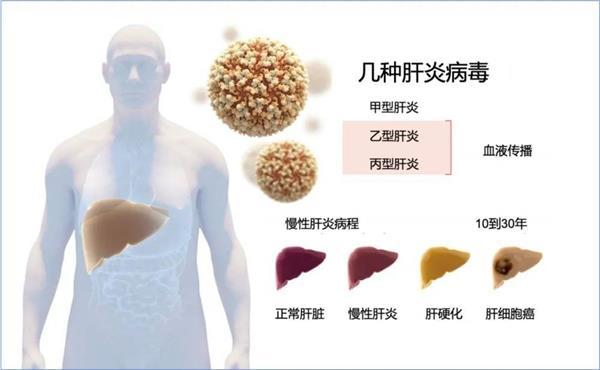 年度重磅:丙肝病毒发现者获诺奖!在中国,有约2500万携带者